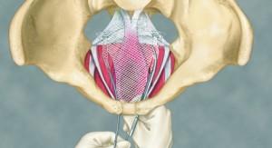 Pelvic organ prolapse, POP, incontinence,